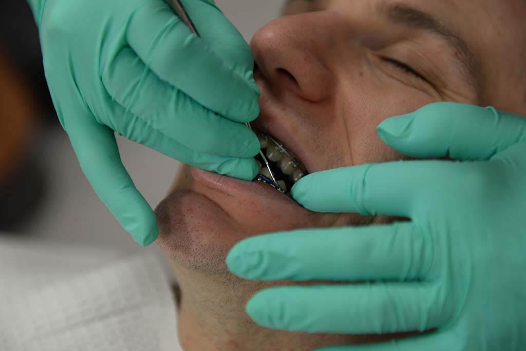 proper ways cleaning braces