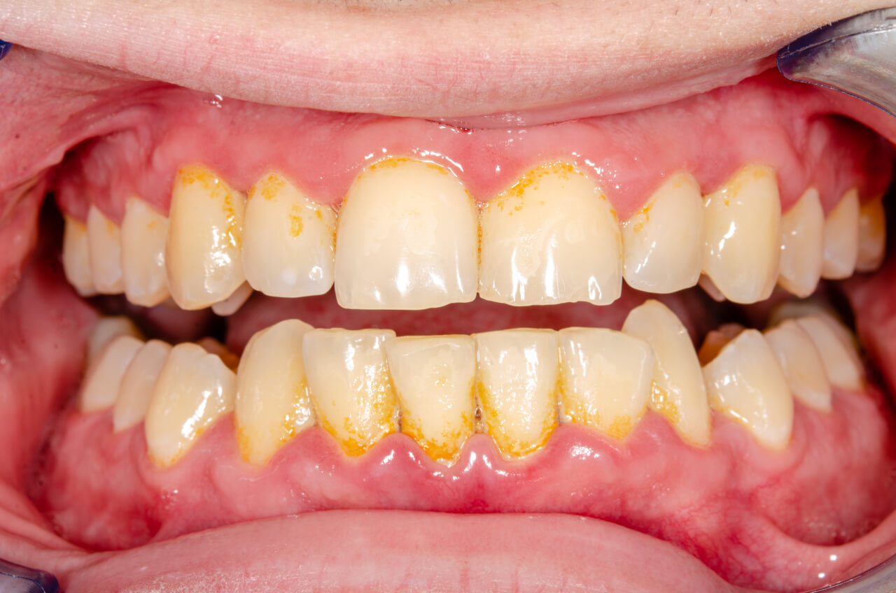 How to remove tartar from teeth