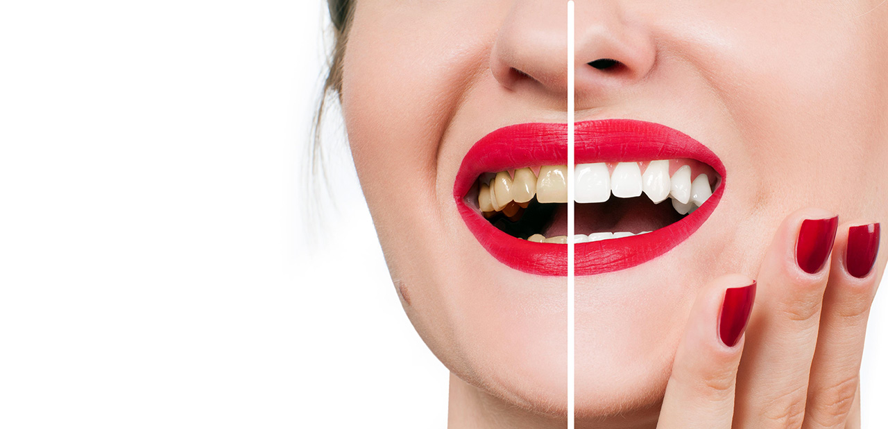 shiny teeth