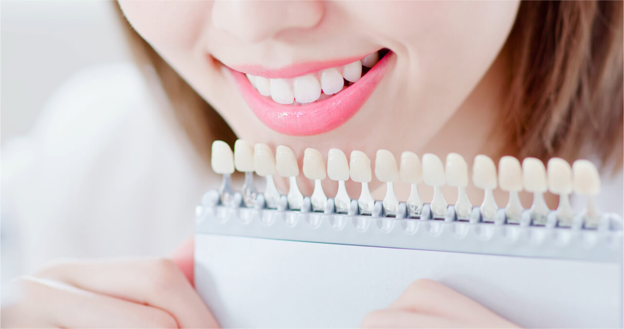 dental veneers pros and cons