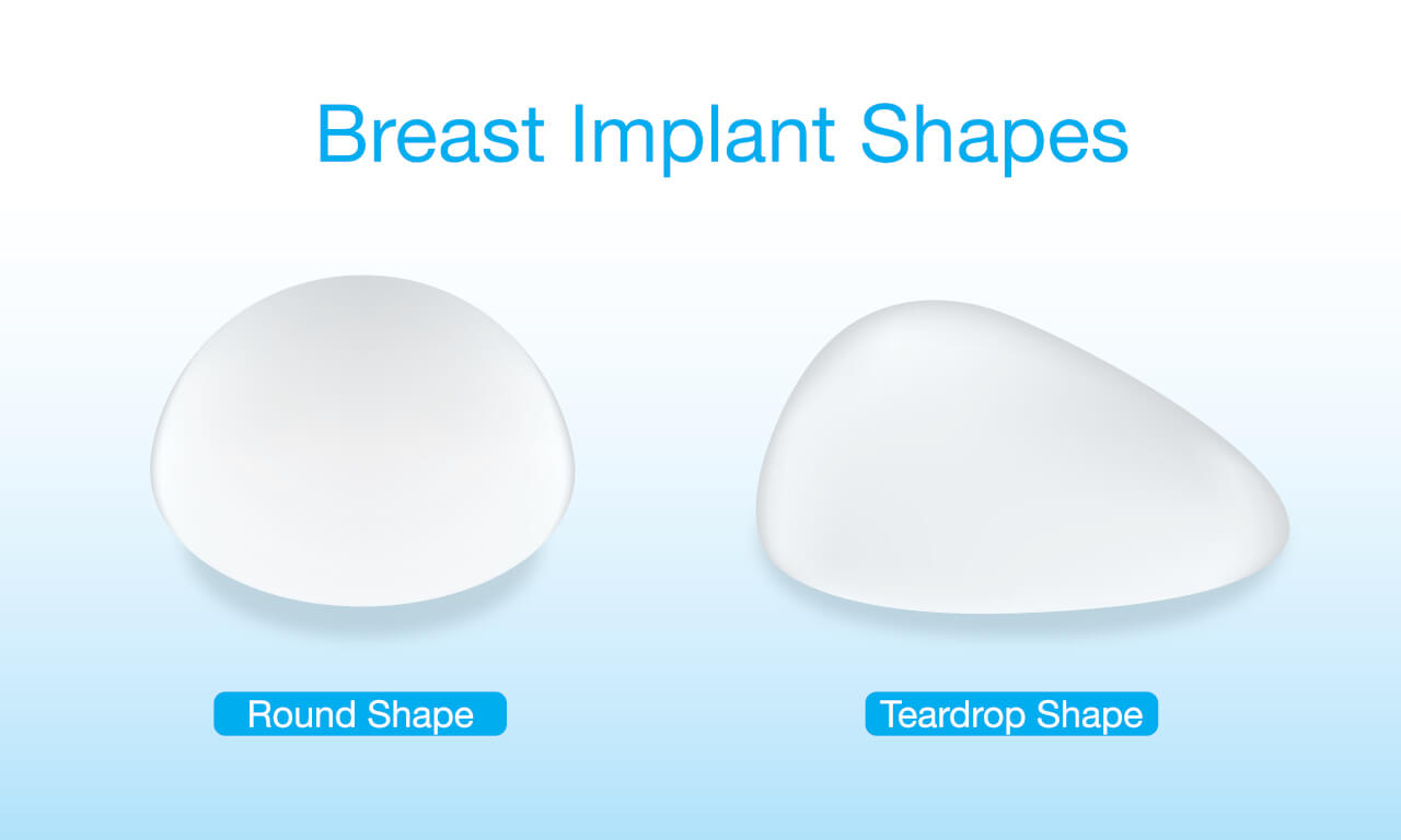 round vs teardrop implants