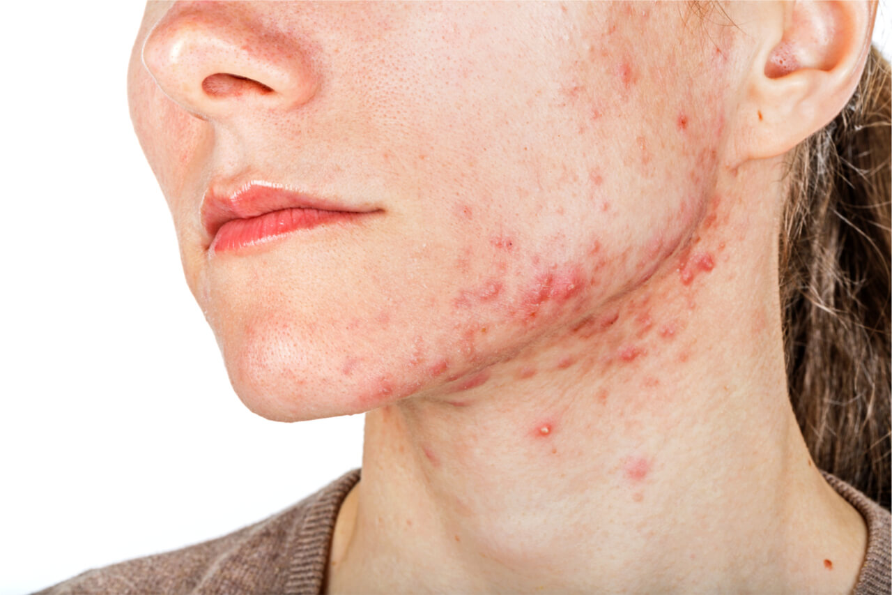 cystic acne injection