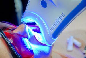 led light teeth whitening