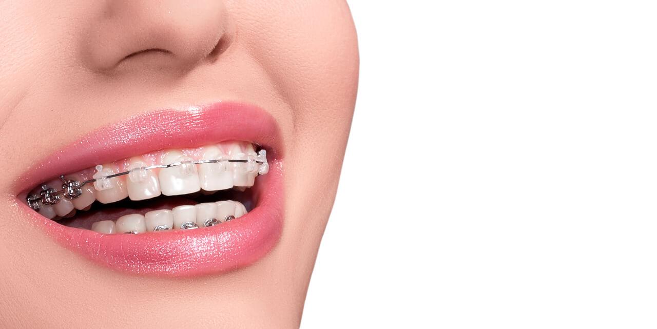 teeth whitener for braces