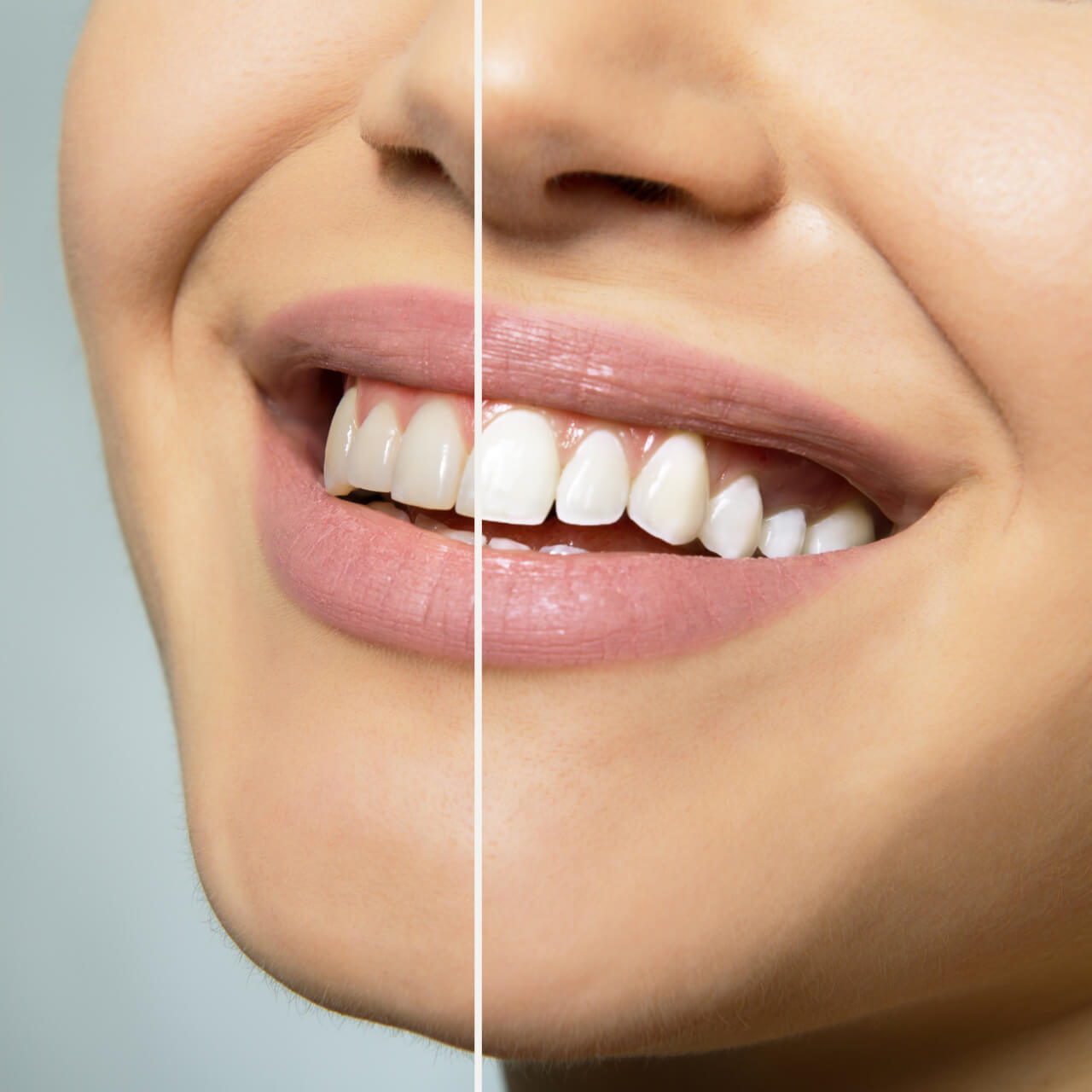 dental teeth whitening costs