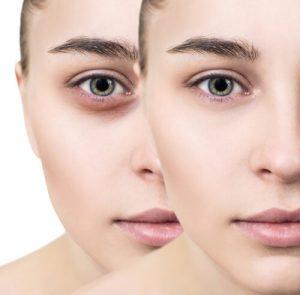 dermal filler under eyes treatment