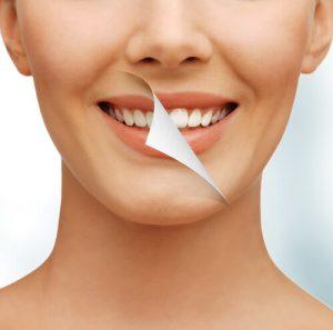 whitening for sensitive teeth