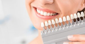 porcelain veneers for crooked teeth