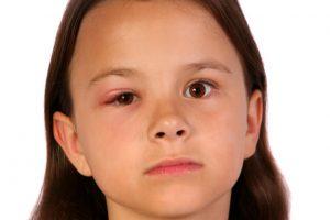 girl with swollen eyelid