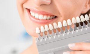 factors how to whiten teeth overnight